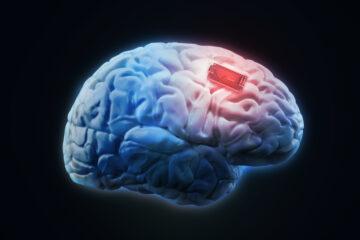 Human brain implant